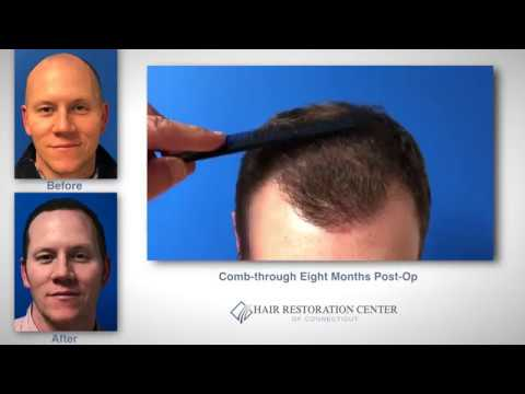 FUE Hair Transplant Case Study  - Connecticut