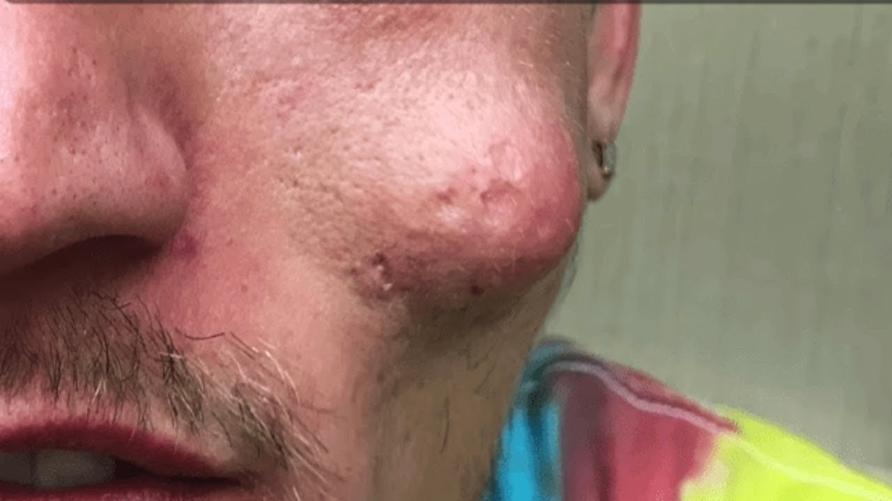 Reddit's Top Pops! Best Dilated Pores, Nose Pimples & Blackhead Extractions!