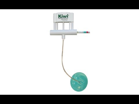 Kiwi® Vacuum-Assisted Delivery at Cesarean Section - YouTube Vacuum Assisted Delivery