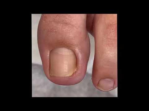 Вросший ноготь. Onychocryptosis