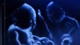 twins baby in the womb by ultrasound
