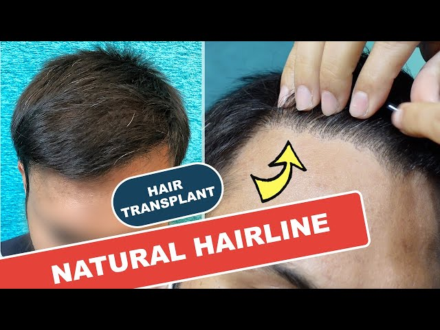 Natural Hairline with 2200 grafts | 8 months Hair Transplant Results