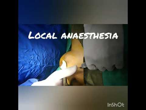 Breast lump Fibroadenoma removal under local anaesthesia
