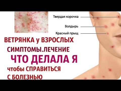 ЗАПРОС: ВЕТРЯНКА у взрослых симптомы и лечение/ Worldinside
