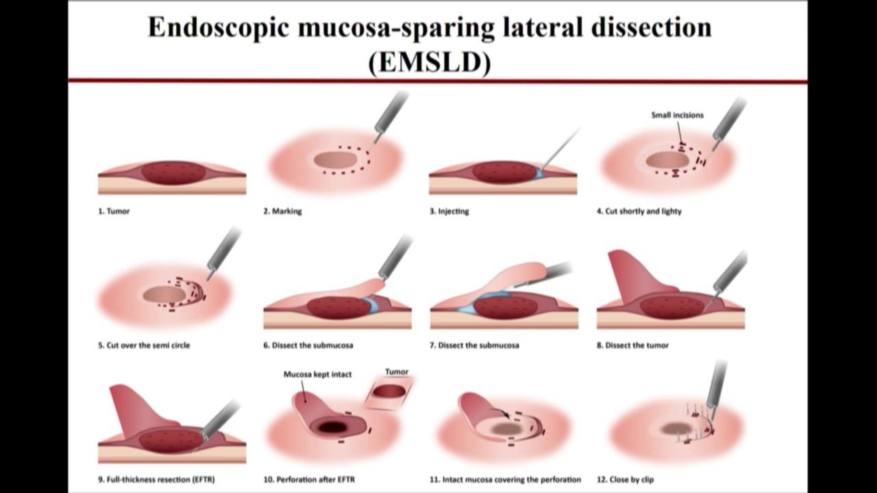 e55788d2385 2017 LI Live  EFTR with Mucosal Preservation to Facilitate Closure