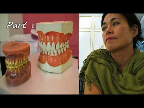 GETTING CHEAP TEETH IN THAILAND ...Part 1  | MEDICAL TOURISM IN THAILAND