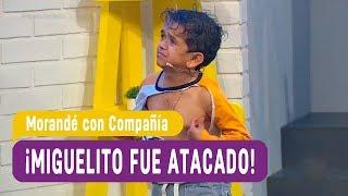 ¡Miguelito fue atacado por un perro! - Morandé con Compañía 2017