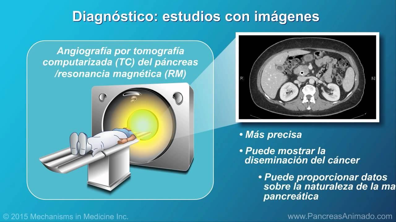 Cáncer de páncreas: fisiopatología, diagnóstico y estadificación ...