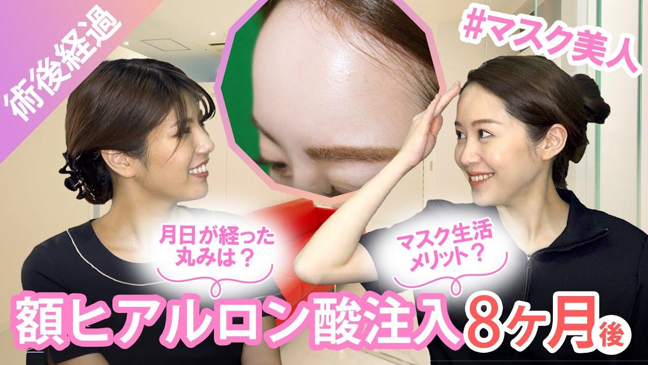 【術後8ヶ月経過】額ヒアルロン酸注入、その後♪ ナチュラルカーブでマスク美人!?