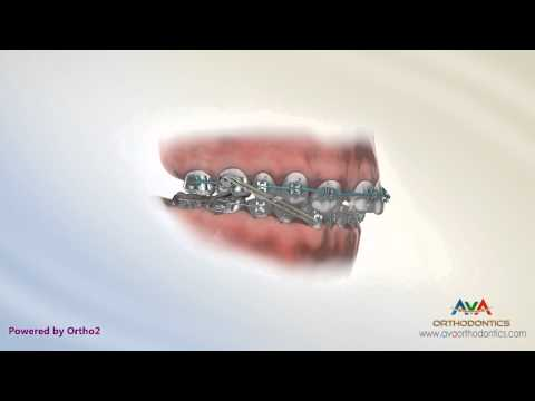 Missing Lateral Incisor - Canine Substitute - Orthodontic & Restorative Treatment