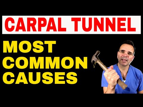 Common Causes of Carpal Tunnel Syndrome