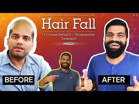 How To Stop Hair Fall and Grow New Hair Naturally in 2 Days - Homemade Hair oil for Hair Fall - 동영상