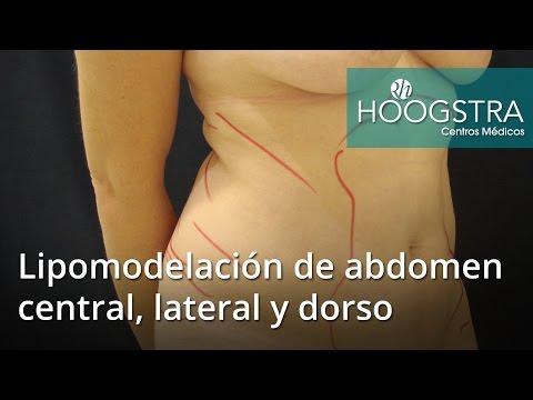 Lipomodelación de abdomen central, lateral y dorso (16094)