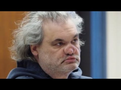 Artie Lange Nose and Recent Relapse 2019