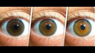 Clearing Cataracts, Dry Eye and Floaters