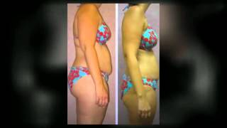 hcg weight loss san clemente injections tablets and drops by holistic solutions