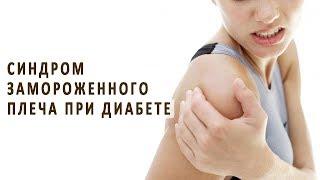 Синдром замороженного плеча при диабете