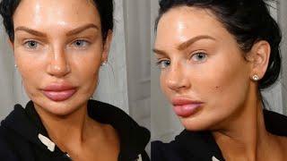 Botox und Fettwegspritze mit 21 😳