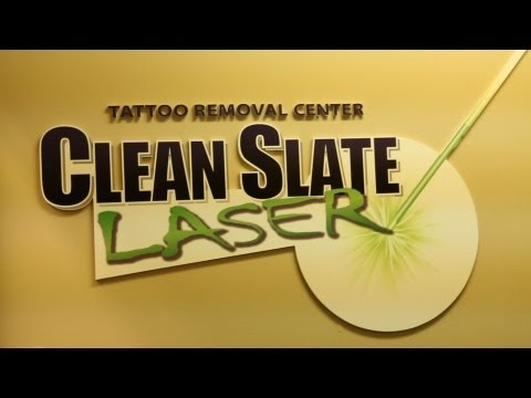 Tattoo removal houston tx houston tattoo removal clinic for Clean slate tattoo removal