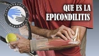 Epicondilitis o codo de tenista, que es y como se produce  /  Fisioterapia a tu alcance