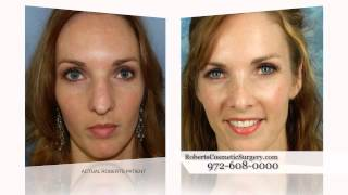 Roberts Cosmetic Surgery Rhinoplasty Patient Testimonial TV spot Thumbnail