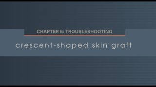 Chapter 6.2 Crescent Shaped Skin Graft