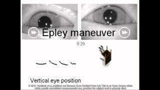 Curing BPPV in a 96 year old patient - Supplementary video 58785 YouTube Videos