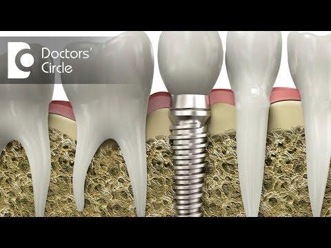 Can Cancer patients go for Dental Implant?  - Dr. Rajeev Kumar G