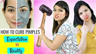 HOW To CURE Pimples/Acne - Expectations vs Reality | #Skincare #Routine #Anaysa