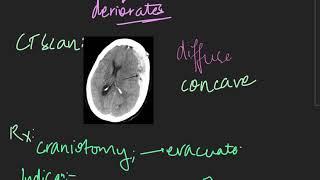 chronic subdural hematoma