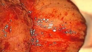 DrPaoloParma.com: tecnica di tese microchirurgica