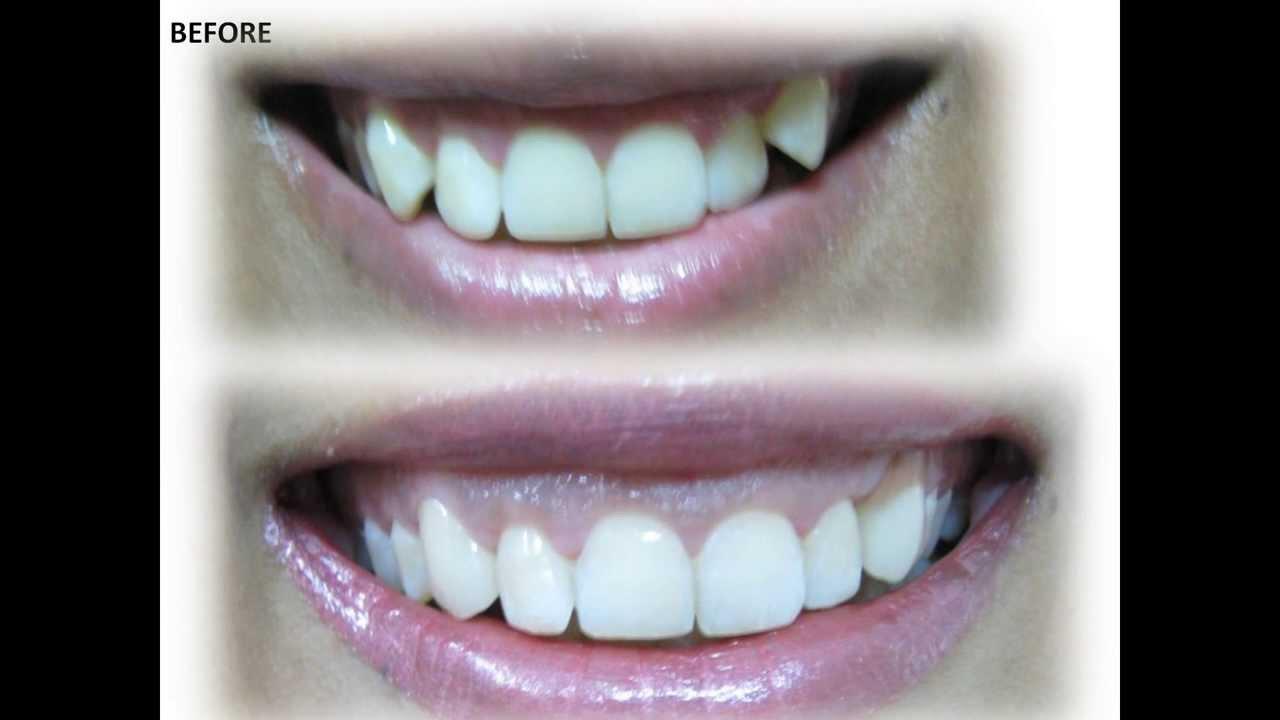 canine teeth
