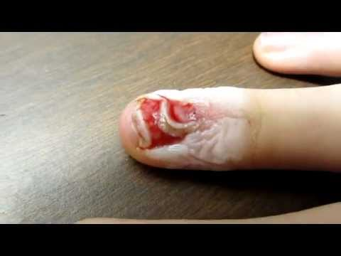 Ripped A Fingernail Off