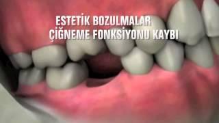 İmplant Nedir ? İmplant Diş Nedir ? Faydaları Nelerdir?