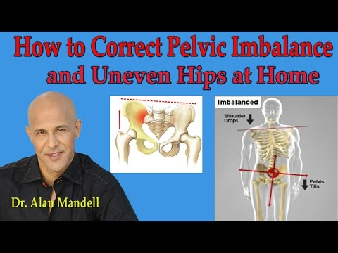 How To Correct Pelvic Imbalance and Uneven Hips at Home - Dr Mandell