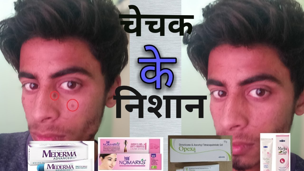How To Remove Chicken Pox Scars Spots च चक क द ग