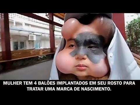 Mulher tem 4 balões implantados em seu rosto para tratar uma marca de nascimento