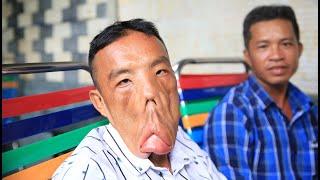 Bất ngờ kết quả chàng trai mặt quỷ sau khi gặp bác sĩ Tú Dung | Phong Bụi