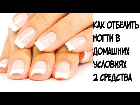 Чем быстро отбелить ногти в домашних условиях быстро