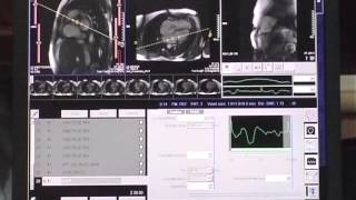 How to perform a cardiac MRI study