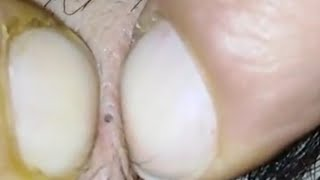 Blackheads, Whiteheads And Cystic Acne Removal and  Pimples On Face