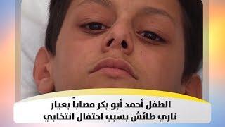 الطفل أحمد أبو بكر مصاباً بعيار ناري طائش بسبب احتفال انتخابي