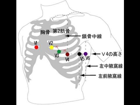心電図 12 方 誘導 貼り
