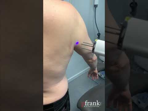 Laser Therapy for Scars • PFRANKMD SCAR PROTOCOL