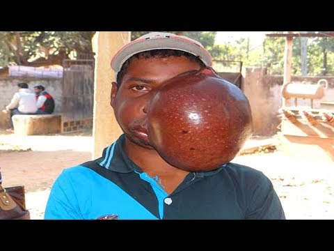 amar's-10-pound-cyst!-largest-facial-tumors!