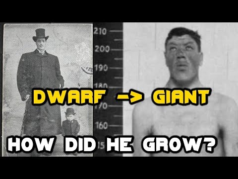 He Was A DWARF...But Then Grew Into A GIANT! What Happened?