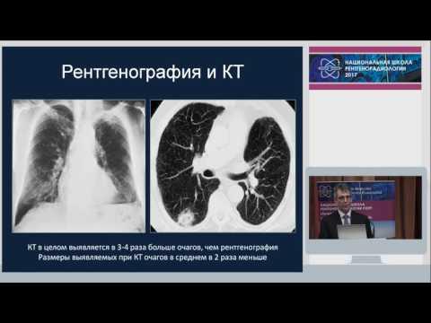 И.Е. Тюрин - Скрининг рака легкого: от ФЛГ до низкодозной КТ легких