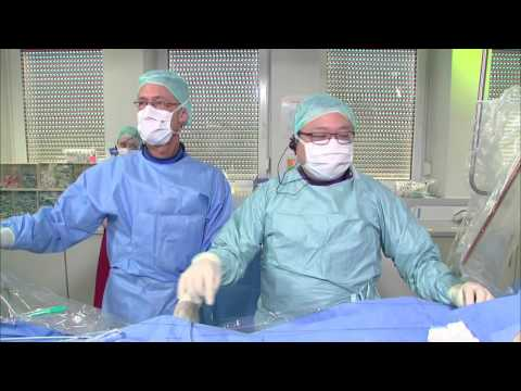 Frankfurt CSI 2016 Lifetech LAA Live Case by Dr. YY Lam and Prof. Horst Sievert
