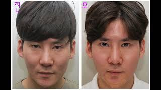 [라리성형외과] 쌍꺼풀없애는수술 전후사진으로 확인해요