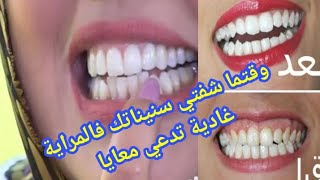 أقسم بالله لن تلجأ لطبيب الأسنان لتبييض أسنانك ولا لإزالة الجير سيسقط وحده بعد مشاهدتك هذا الفديو